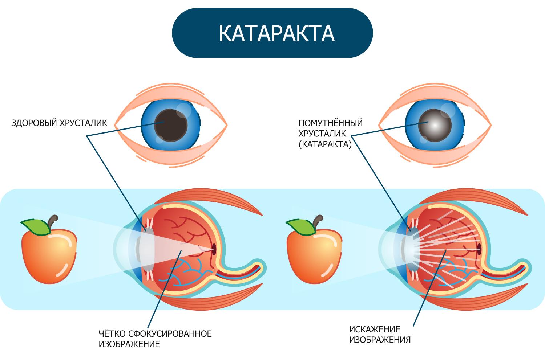 катаракта симптомы