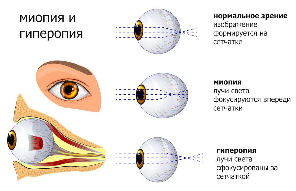 миопия и гиперопия