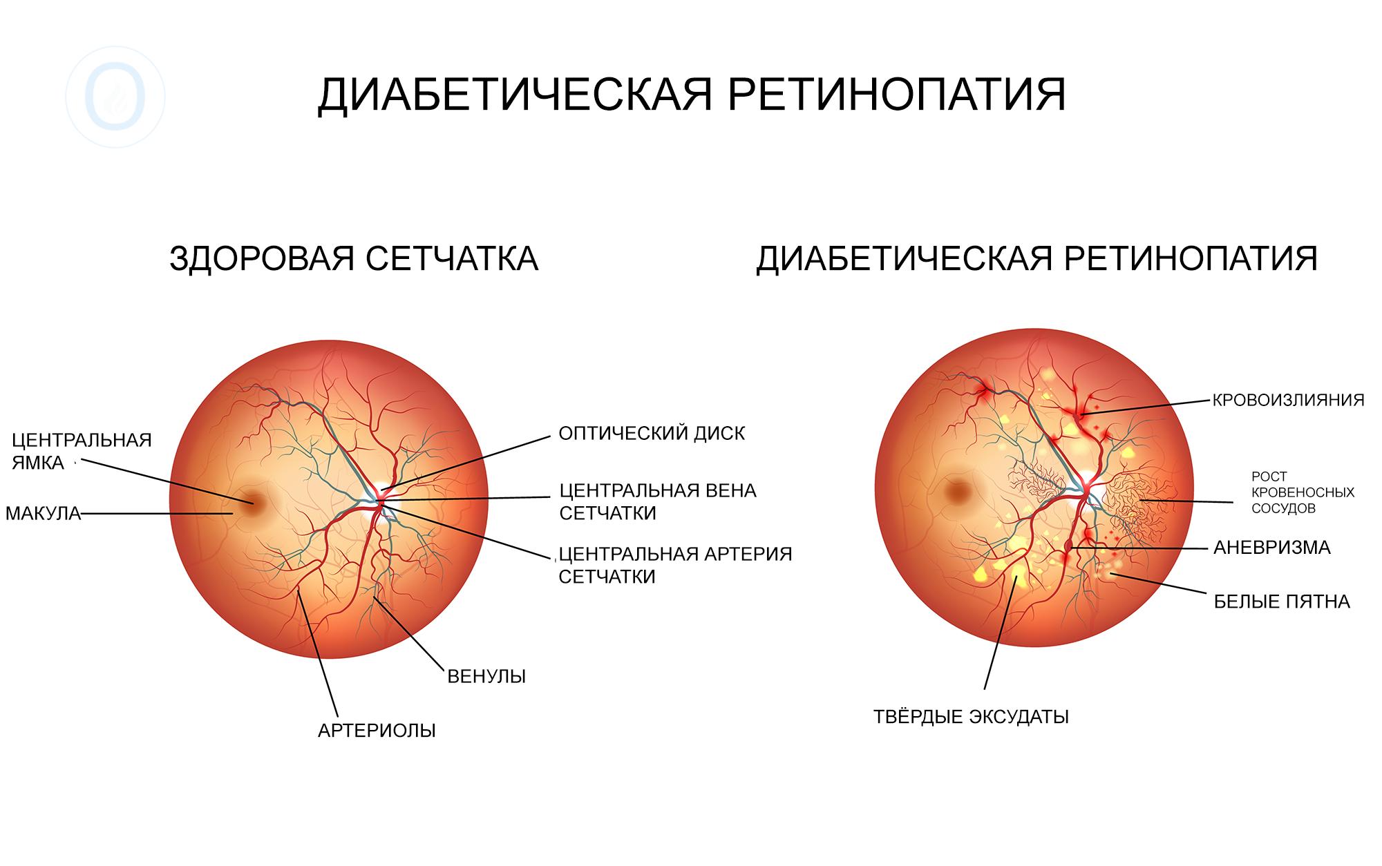 диабетическая ретинопатия сравнение