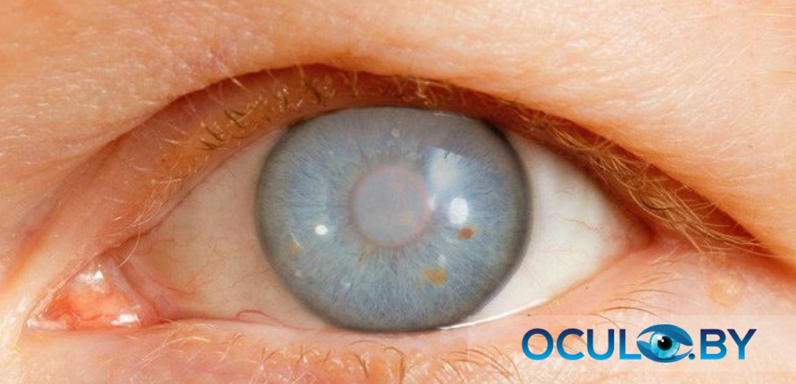 глаукома рекомендации