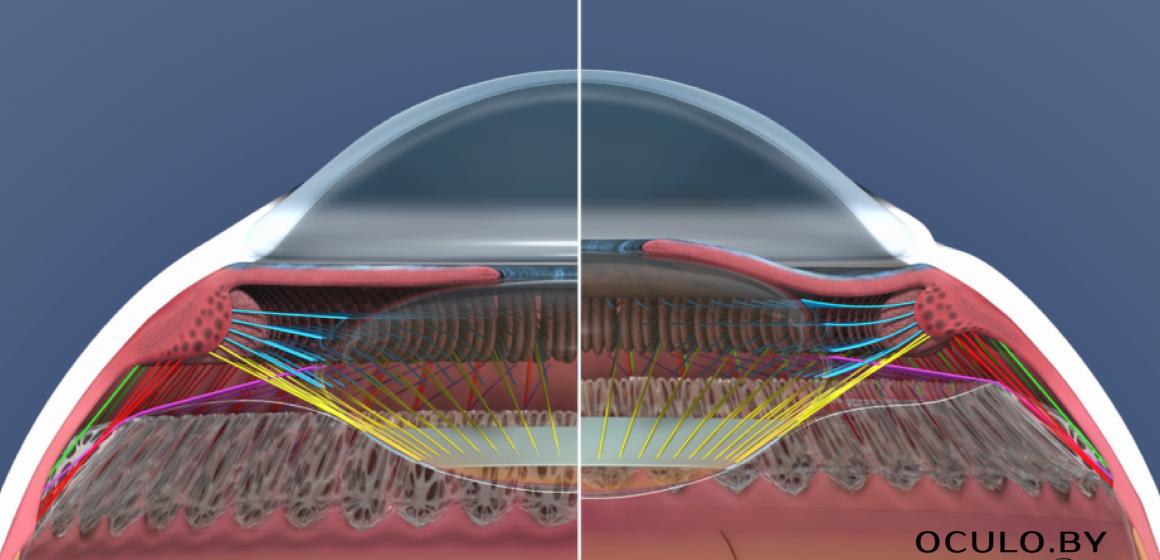 Аккомодационный аппарат глаза