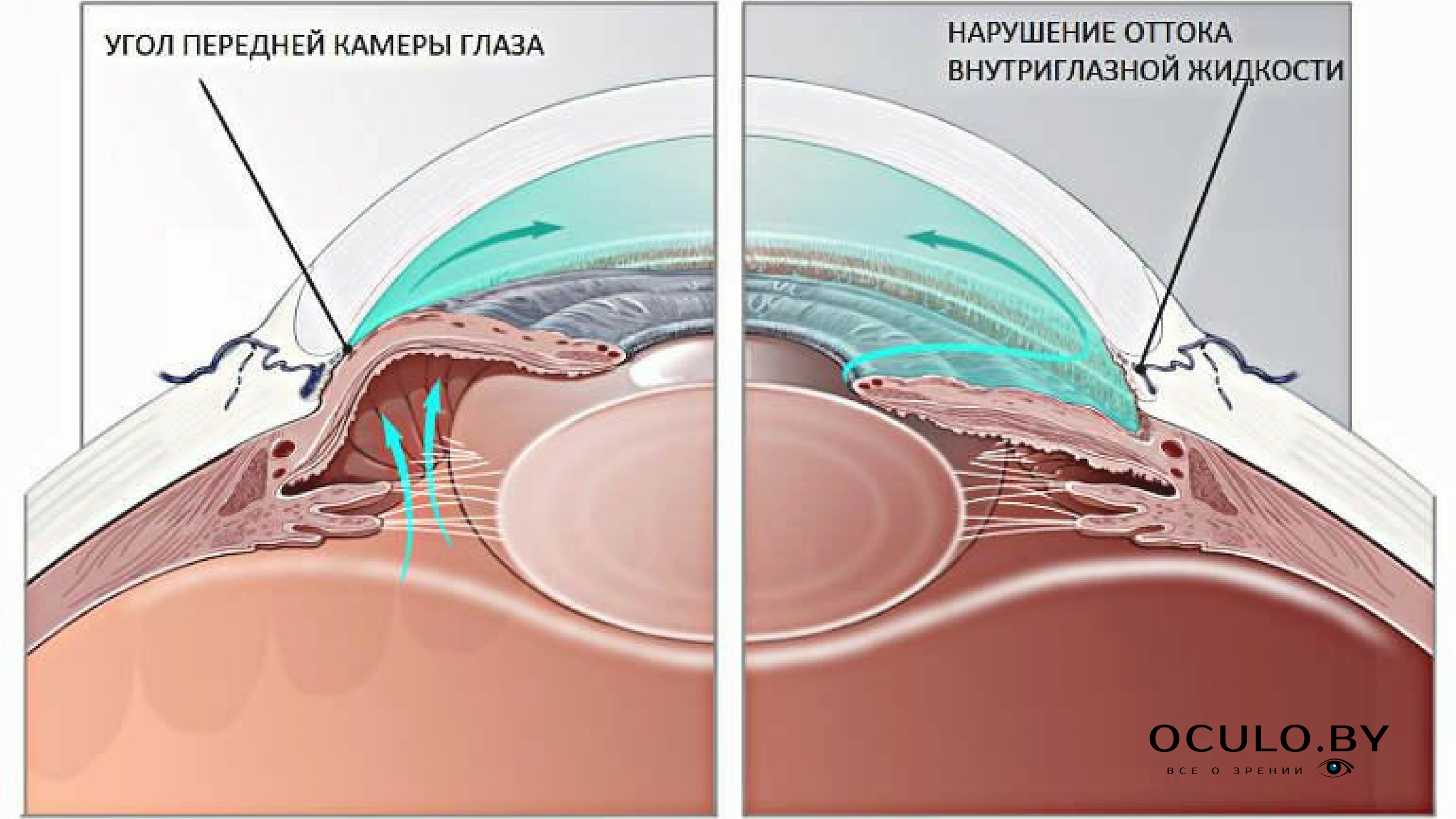 Передняя камера глаза